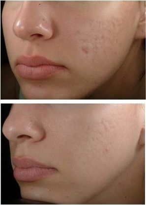 Cover Up Acne Scars With Makeup